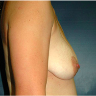 33 year old woman treated with Breast Lift with Implants before 3666000