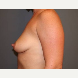 25-34 year old woman treated with Breast Lift before 3339542