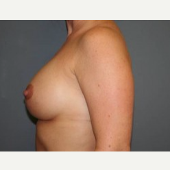 25-34 year old woman treated with Breast Lift after 3339542