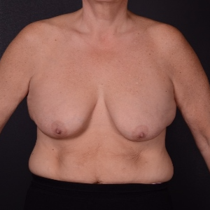 45-54 year old woman treated with Breast Lift with Implants before 3737513