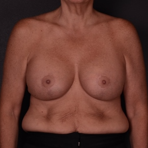45-54 year old woman treated with Breast Lift with Implants after 3737513