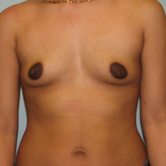 Breast Augmentation on 5ft3, 138 pound patient before 3026957
