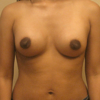 Breast Augmentation on 5ft3, 138 pound patient after 3026957