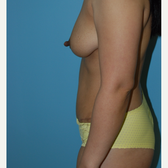 35-44 year old woman treated with Tummy Tuck after 3061222