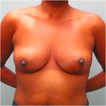 33 year old woman treated with Breast Lift after 3467373