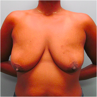 33 year old woman treated with Breast Lift before 3467373