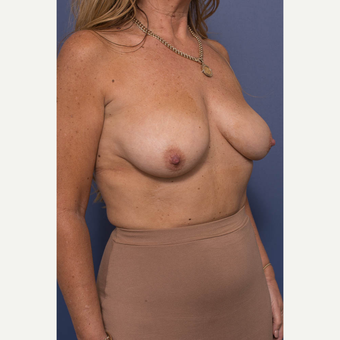 45-54 year old woman treated with Breast Lift with Implants before 3739082