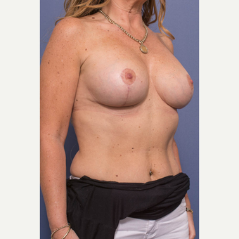 45-54 year old woman treated with Breast Lift with Implants after 3739082