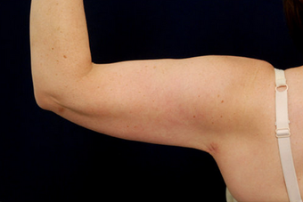Liposuction of the Upper Arms after 904279