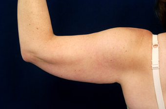 Liposuction of the Upper Arms before 904279