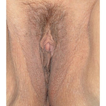 45-54 year old pleased with Thermivas ability to treat aesthetic vaginal concerns before 2460329