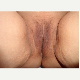 45-54 year old pleased with Thermivas ability to treat aesthetic vaginal concerns after 2460329