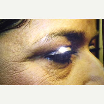 65-74 year old woman treated with Eyelid Surgery after 3379129