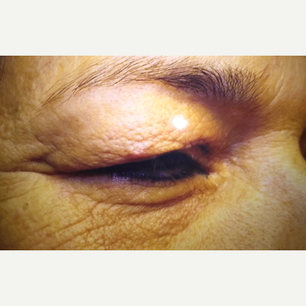 65-74 year old woman treated with Eyelid Surgery before 3379129
