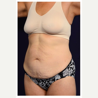 45-54 year old woman treated with Tummy Tuck before 3070919