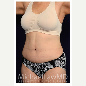 45-54 year old woman treated with Tummy Tuck after 3070919