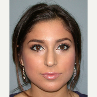 18-24 year old woman treated with Rhinoplasty before 3685198