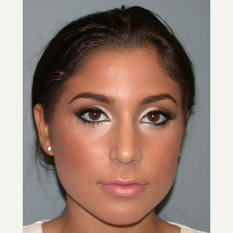 18-24 year old woman treated with Rhinoplasty after 3685198