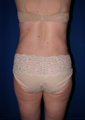 Smart Lipo for back rolls and muffin top