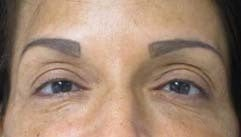 Eyelid Surgery before 3164347