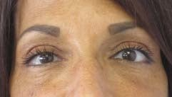 Eyelid Surgery after 3164347