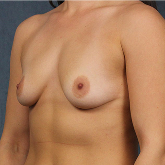 Mentor Breast Implants before 3033604