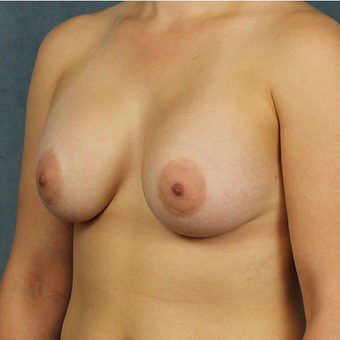 Mentor Breast Implants after 3033604