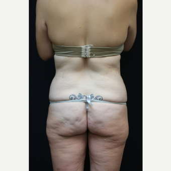 30 year old woman treated with Liposuction after 3089245