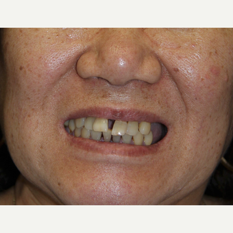 All-on-4 Dental Implants before 2615012