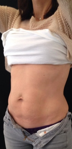 35-44 year old woman treated with CoolSculpting 1700439