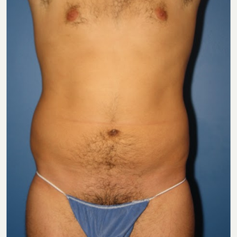 25-34 year old man treated with Liposuction before 3542838