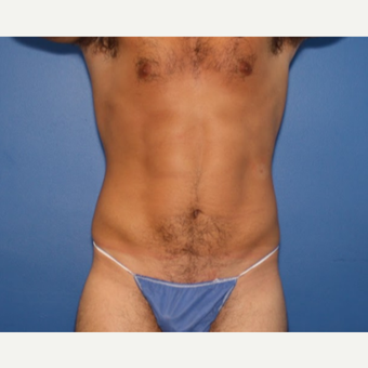 25-34 year old man treated with Liposuction after 3542838