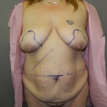 35-44 year old woman treated with Mommy Makeover before 3158516