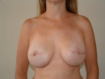 Breast Reconstruction after 735401
