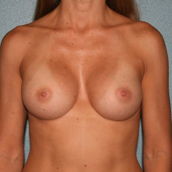 35-44 year old woman treated with Breast Implant Revision after 3227451