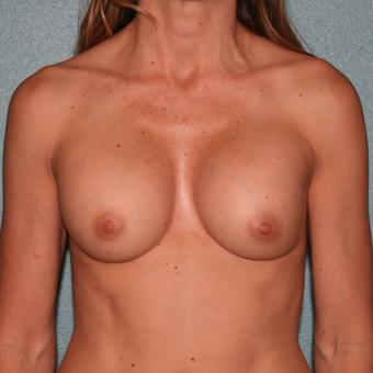 35-44 year old woman treated with Breast Implant Revision before 3227451