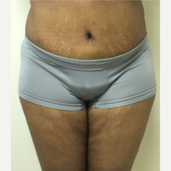 45-54 year old woman treated with Tummy Tuck after 3400745