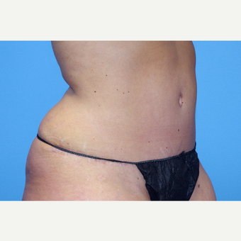 25-34 year old woman treated with Tummy Tuck after 2775171