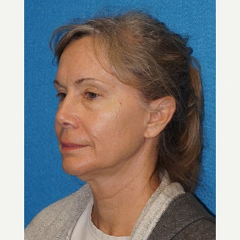 62 year old woman treated with Facelift