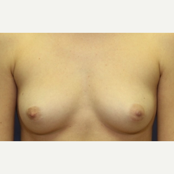 23 year old woman with a right nipple sparing mastectomy and bilateral reconstruction before 3060493