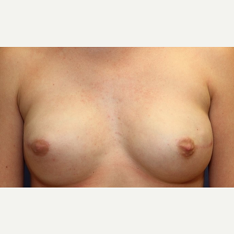 23 year old woman with a right nipple sparing mastectomy and bilateral reconstruction after 3060493
