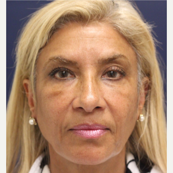 45-54 year old woman treated with Bellafill after 3143426