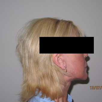Advanced Mini Facelift after 3139801