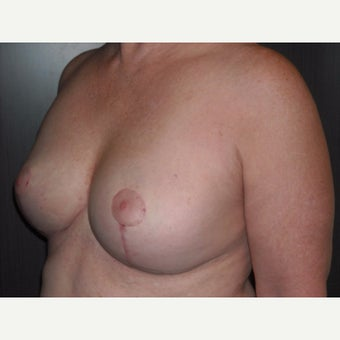 60 year old lady underwent breast lift at the time of removal of her old, ruptured breast implants. 1737078