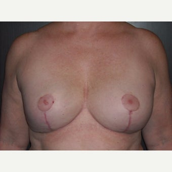 60 year old lady underwent breast lift at the time of removal of her old, ruptured breast implants. after 1737078