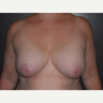 60 year old lady underwent breast lift at the time of removal of her old, ruptured breast implants. before 1737078