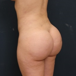 25-34 year old woman treated with Fat Transfer after 3343903