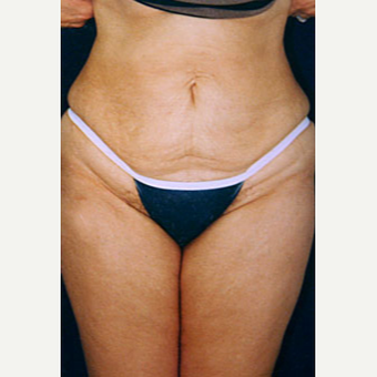 35-44 year old woman treated with Liposuction after 3646556