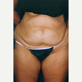 35-44 year old woman treated with Liposuction before 3646556