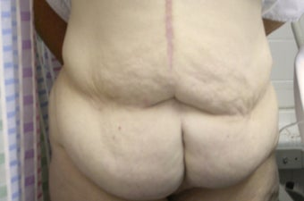 Panniculectomy on 29 Year Old Female before 1101130